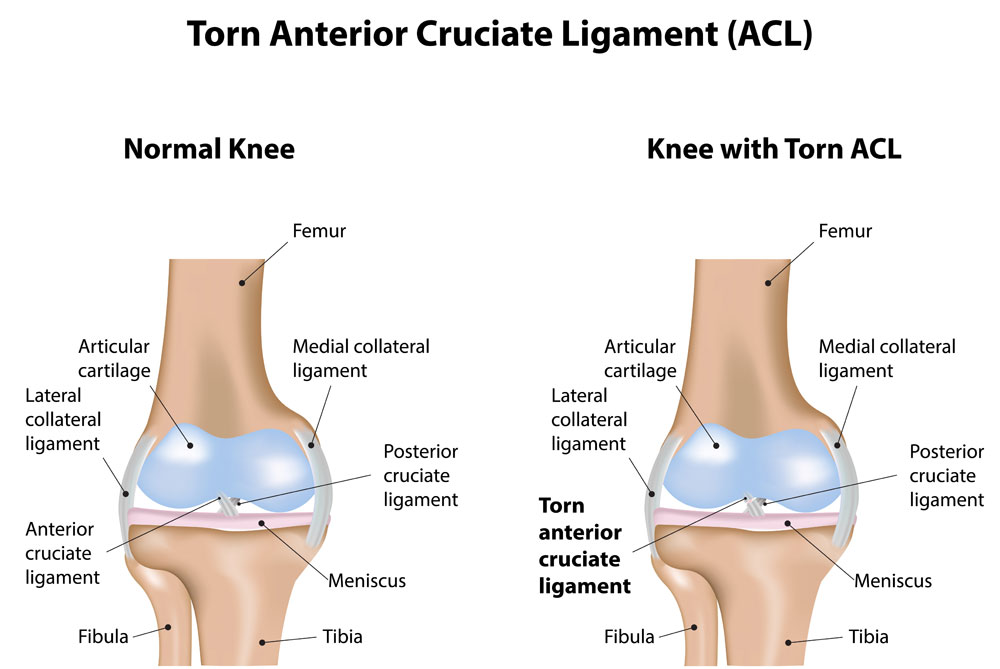 Acl tear knee specialist austin round rock cedar park tx acl injury ccuart Choice Image
