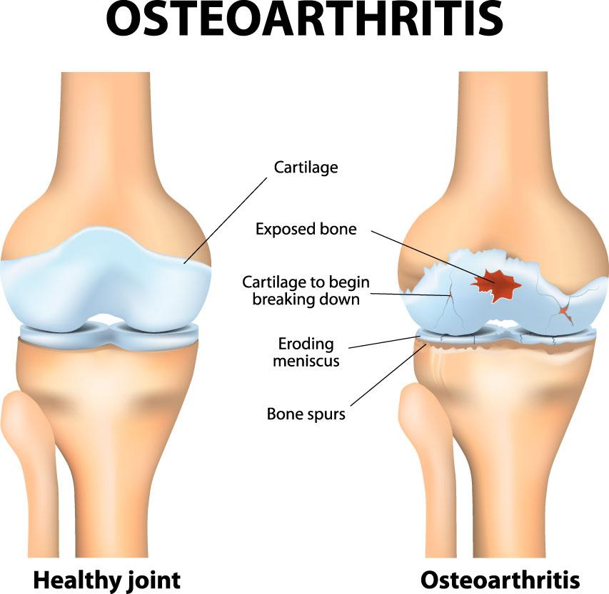 Knee Cartilage Injury Knee Specialist Austin Round Rock Cedar